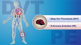 Animation - Understanding and Diagnosing VTE